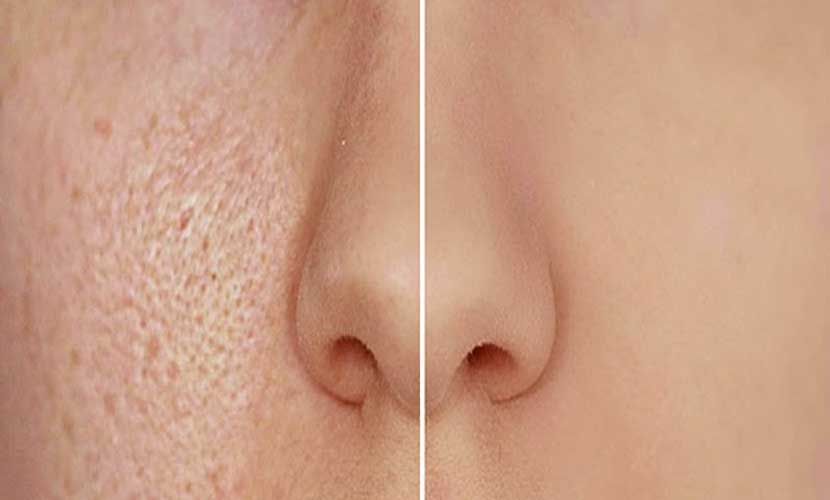 Visit Vardaan Clinic for best results of Milia treatment