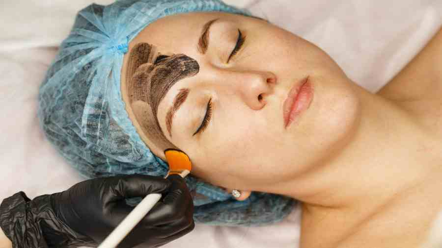 Revolutionizing the skin treatment with carbon peeling at Vardaan clinic(Alma-Q)